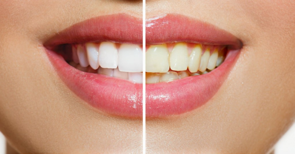 Restore Your Teeth To Perfection With Porcelain Crowns