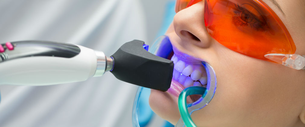 Too Much of a Good Thing: Over-Whitening Your Teeth
