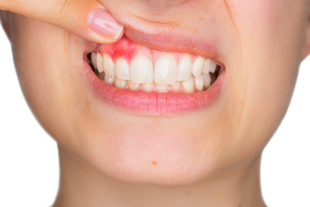 Direct-From-The-Dentist-What-You-Need-To-Know-About-Gingivitis