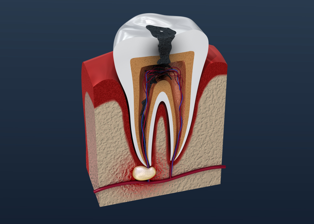 How Do Dentists Treat A Tooth Abscess?