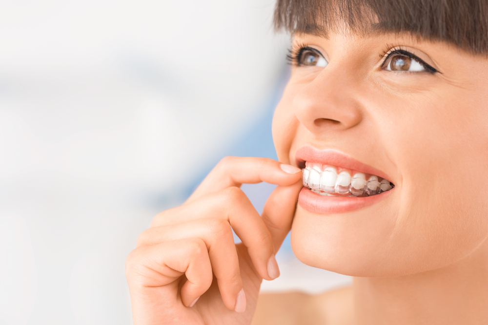 Why Invisalign Makes For A Perfect Holiday Gift