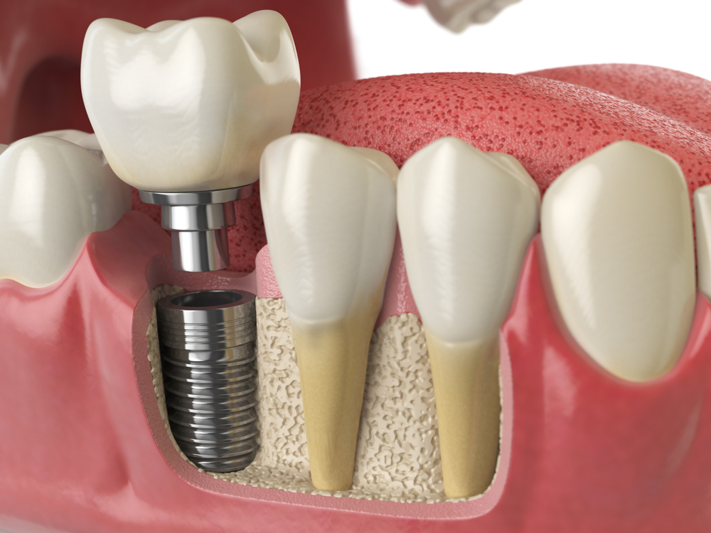 Direct From The Dentist: Will Dental Implants Make My Teeth Sensitive?