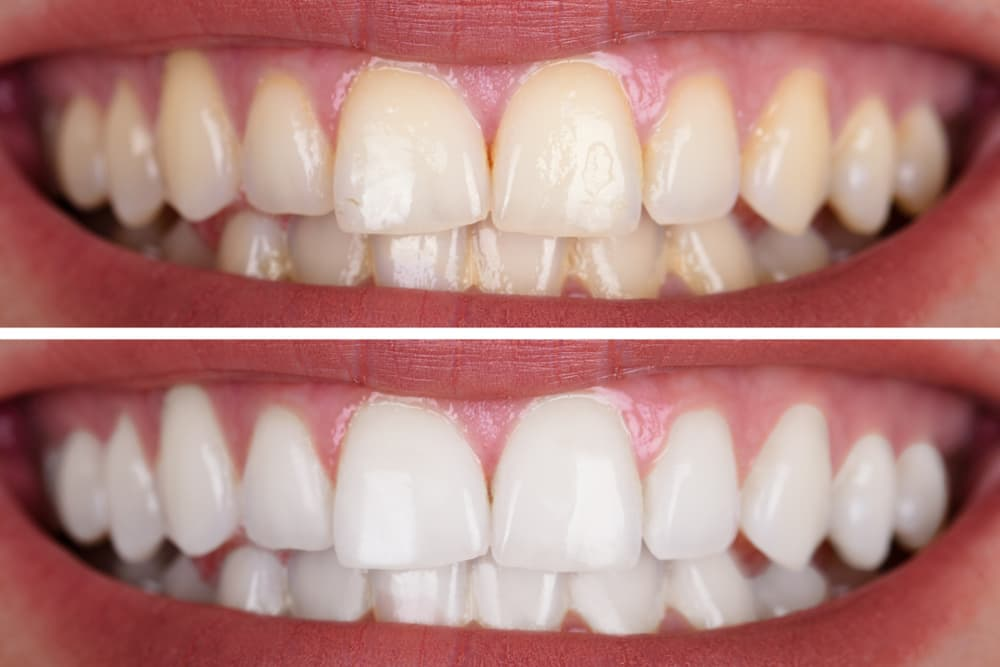 5 Reasons Why You Should Work with Your Dentist for Teeth Whitening